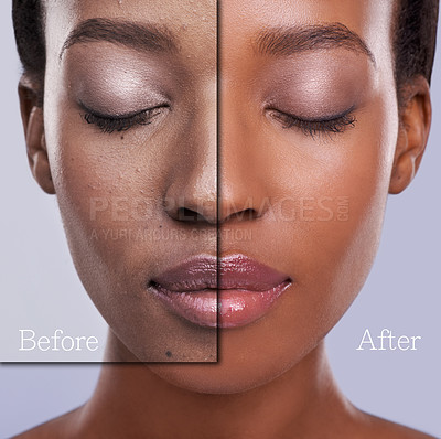 Buy stock photo Before and after concept photo of a young woman's face