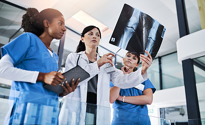 Buy stock photo Shot of a group of doctors discussing the results of an X-ray in a hospital