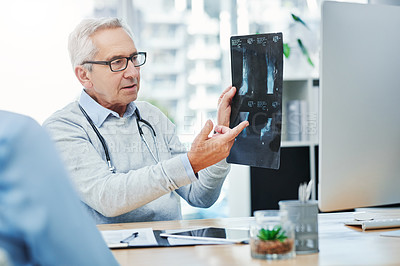 Buy stock photo Cropped shot of a handsome mature male doctor looking over an x ray with a female patient