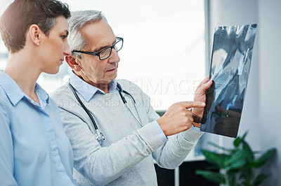 Buy stock photo Cropped shot of two doctors looking over an x ray in their office together