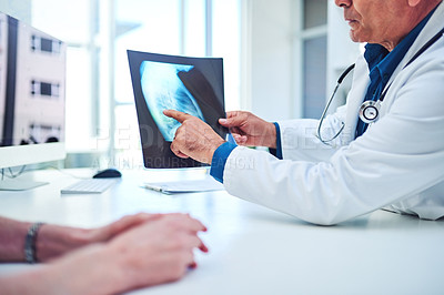 Buy stock photo Shot of a mature doctor discussing the results of an x ray with his patient